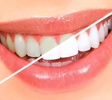 sbiancamento professionale, uno dei trattamenti proposti dal nostro dentista estetico a Roma presso lo Studio Falchetti