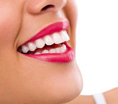 uso delle faccette dentali, trattamento di estetica dentale a Roma presso lo Studio Falchetti