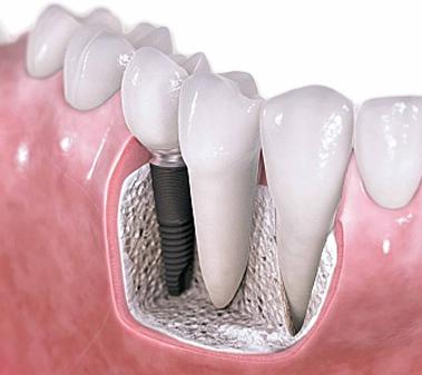 Implantologia Roma, inserimento impianto dentale