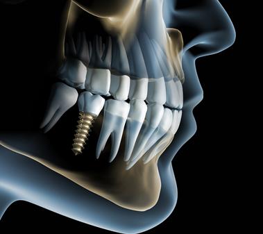 Implantologia Roma, immagine rappresentativa di dentatura con impianto dentale