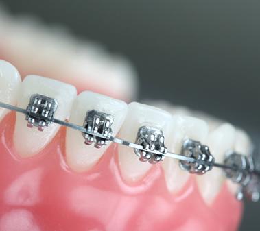 ortodonzia fissa a Roma con apparecchio ortodontico