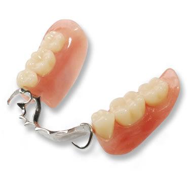 protesi dentarie realizzate a Roma presso lo studio dentistico della Dr.ssa Paola Falchetti