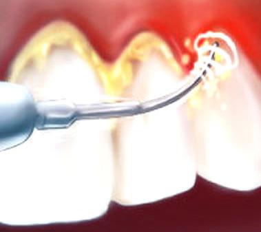ablazione del tartaro con seduta di pulizia dei denti professionale a Roma