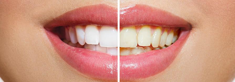 risultato di uno sbiancamento denti professionale realizzato a Roma presso lo Studio della Dr.ssa Paola Falchetti