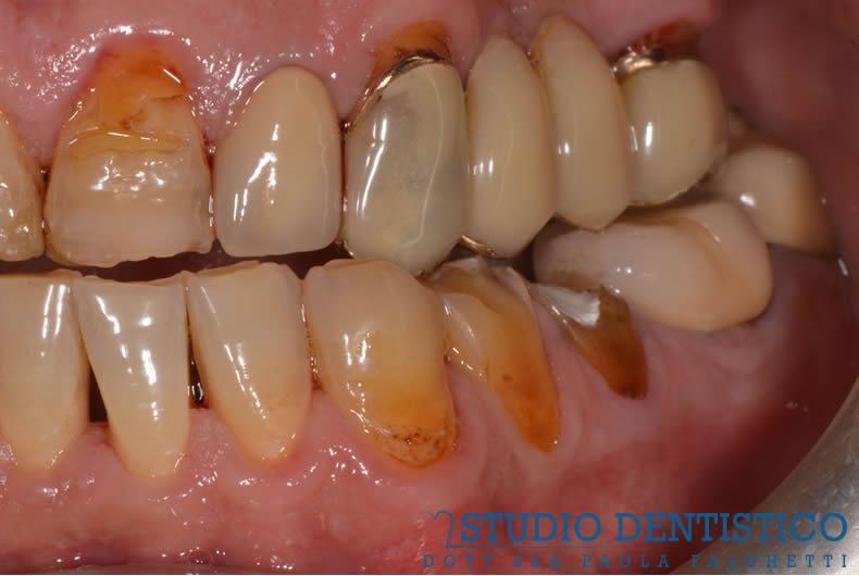 riabilitazione con faccette e corone denti rovinati