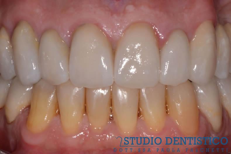 riabilitazione con faccette e corone arcata superiore e inferiore denti, foto dello studio dentistico roma san giovanni paola falchetti