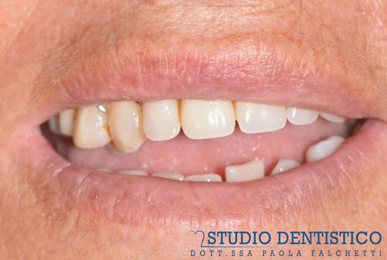 avanzamento lavoro protesi denti