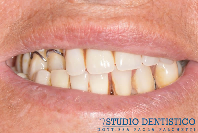 sorriso protesi caso studio