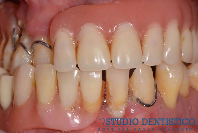 riabilitazione con protesi impianto di denti rovinati e malati dentista roma san giovanni