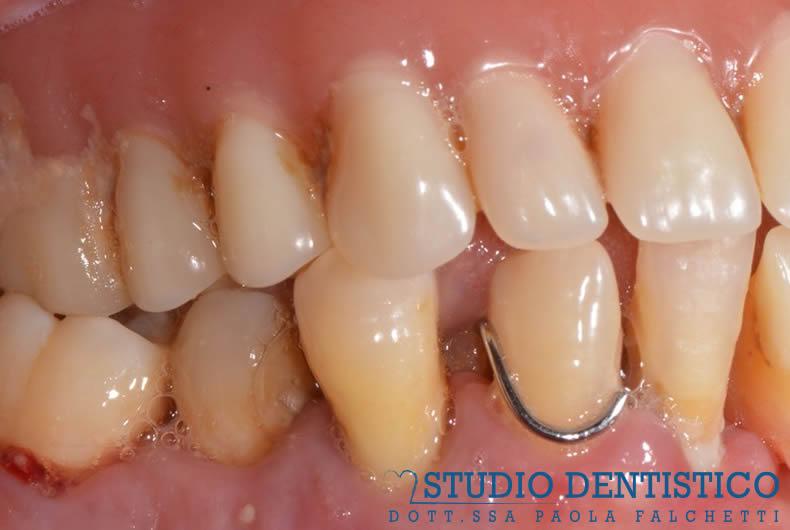altra foto dello studio dentistico roma san giovanni, riabilitazione con protesi