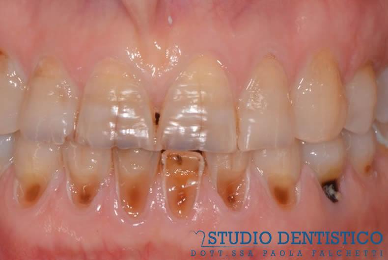 riabilitazione su faccette estetiche superiori ed inferiori prima, denti rovinati e cariati