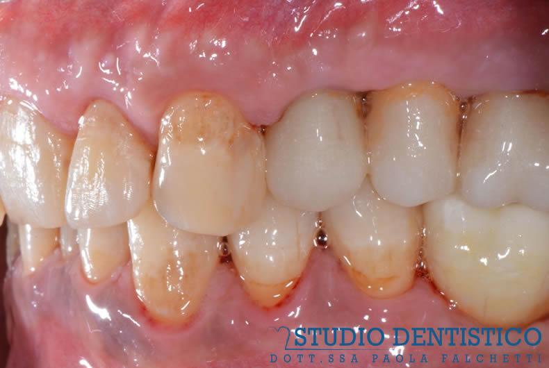 foto frontale denti prima dell'installazione dell'impianto