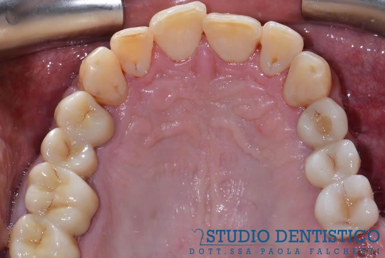 arcata inferiore denti riabilitazione impianti