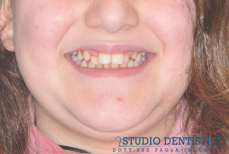 terapia-ortodontica-fissa-01