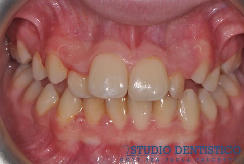 terapia-ortodontica-fissa-02