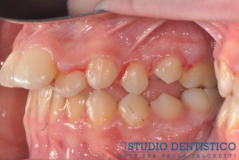 terapia-ortodontica-fissa-03