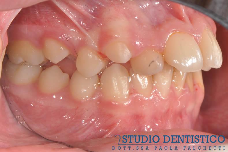 terapia-ortodontica-fissa-04