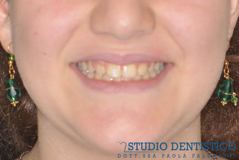 terapia-ortodontica-fissa-07