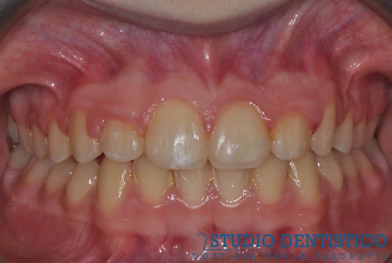 terapia-ortodontica-fissa-08