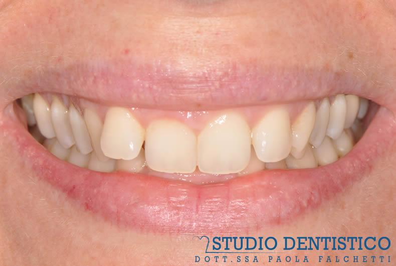 terapia-ortodontica-invisalign-full-01