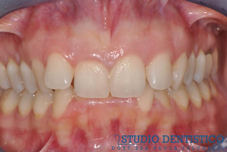 terapia-ortodontica-invisalign-full-04
