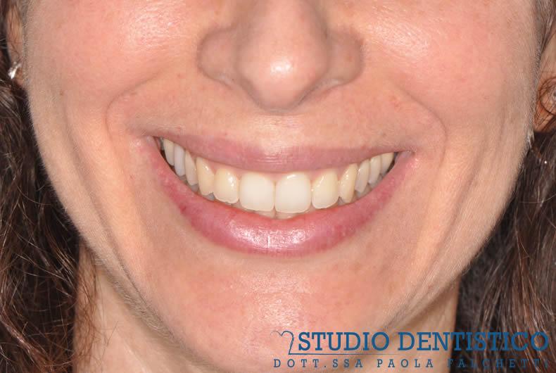 terapia-ortodontica-invisalign-full-05