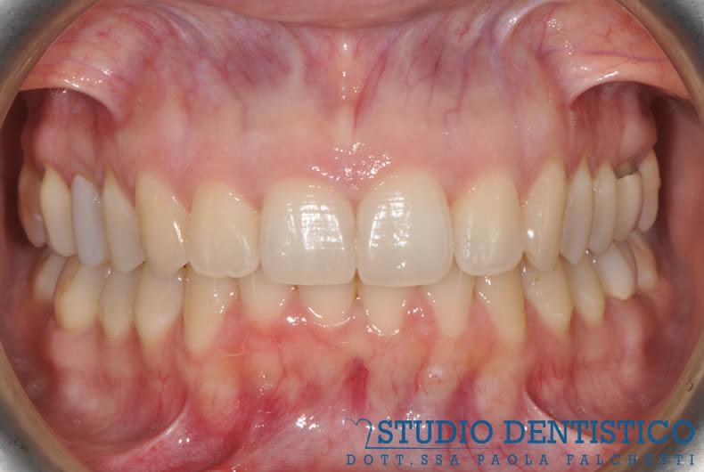 terapia-ortodontica-invisalign-full-06