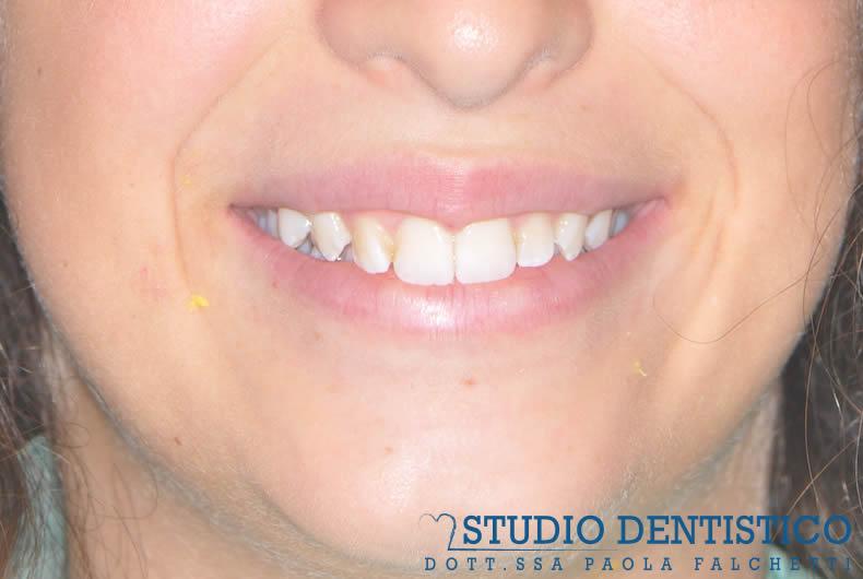 terapia-ortodontica-invisalign-teen-01