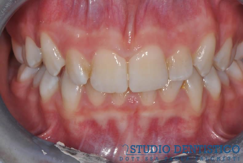 terapia-ortodontica-invisalign-teen-02
