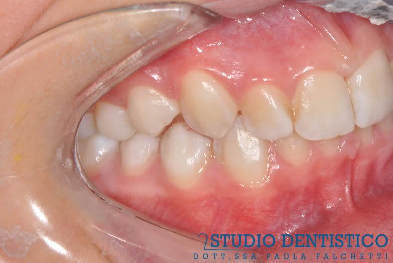 terapia-ortodontica-invisalign-teen-03