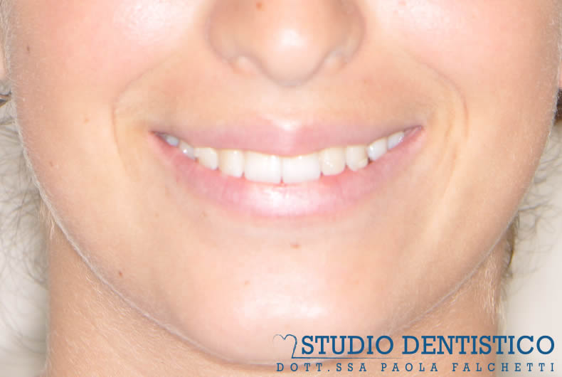 terapia-ortodontica-invisalign-teen-07