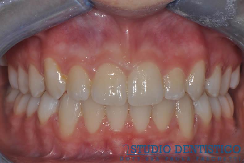 terapia-ortodontica-invisalign-teen-08