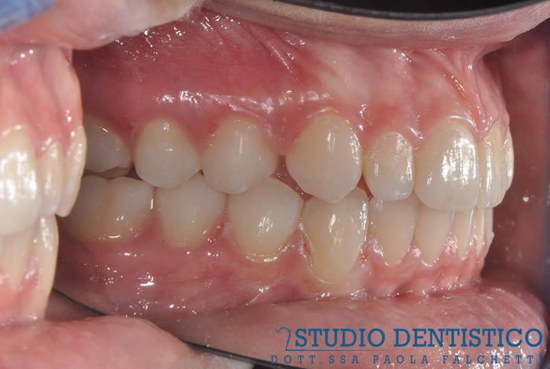 terapia-ortodontica-invisalign-teen-10