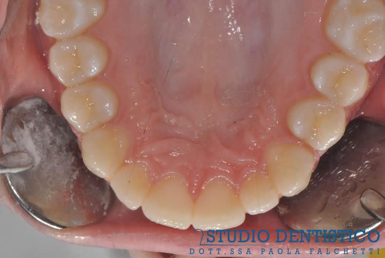 terapia-ortodontica-invisalign-teen-11