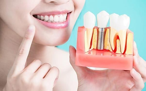 curare impianto dentale