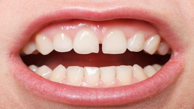 Diastema: Come Eliminare La Fessura Tra I Denti