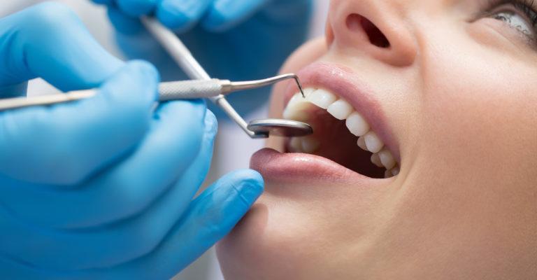 dentista igiene orale