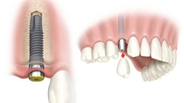 immagine di impianto dentale