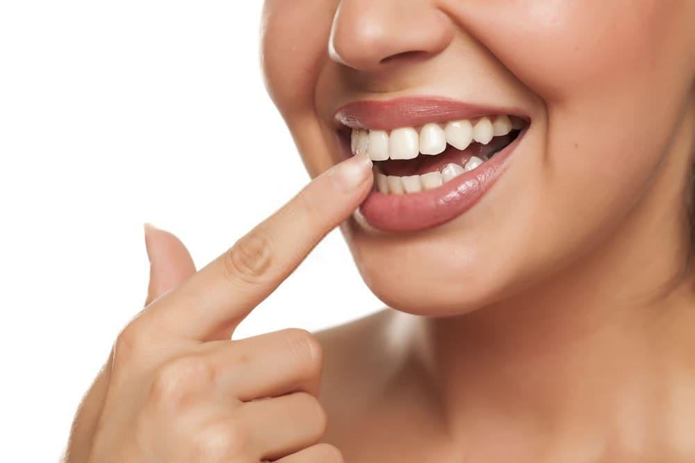 intarsi dentali perchè servono