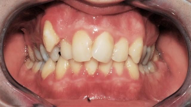 Foto Di Affollamento Dentale