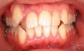 affollamento dentale in un bambino, foto scattata dalla Dr.ssa Paola Falchetti