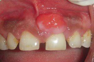 un caso di granuloma dentale