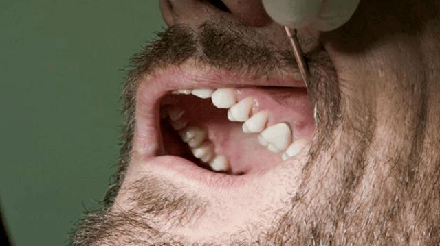 Granuloma Dentale: Cause, Sintomi, Cura, Prevenzione