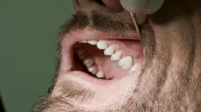 Esempi Pratici Di Granuloma Dentale