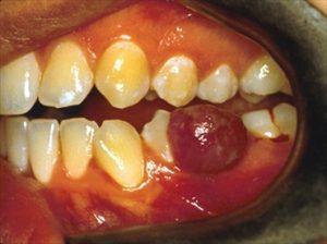 foto di un granuloma dentale