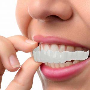 invisalign per ottenere risoluzione affollamento dentale