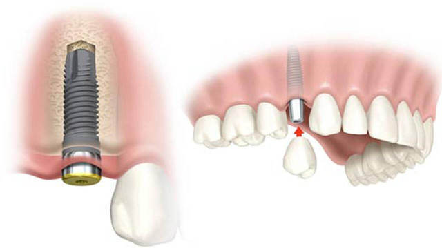 Impianto Dentale, Rigetto E Complicazioni Possibili