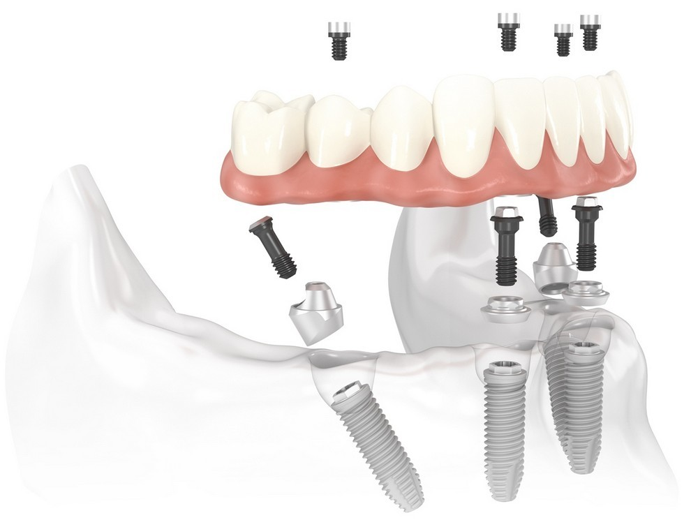 implantologia a carico immediato visione laterale inserimento protesi
