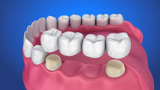 foto di protesi dentaria fissa