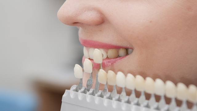 Faccette Dentali A Roma: Ritrova Il Sorriso Perduto!